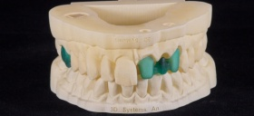 3D принтер 3D systems Projet 3600 Dental